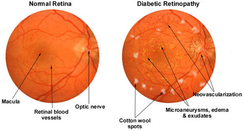 diabetic-retinopathy-large